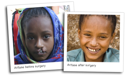 Arfiase, before and after surgery for cleft palate